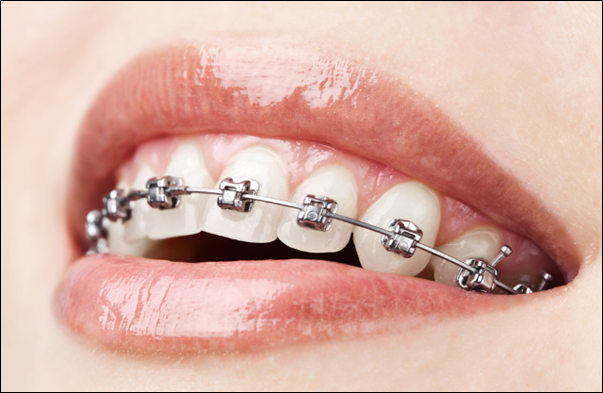 orthodontics treatment
